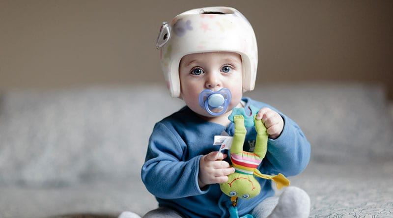 Do Helmets Help? Preventing and Treating Infant Skull Deformation